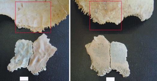 Fragmentos del cráneo del niño de hace 1,5 millones de años.|PLoS ONE